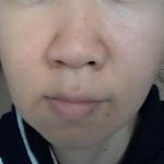 角質培養:頬ずりで皮剥け