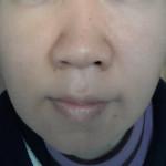 肌断食・水洗顔経過:16ヶ月目の肌