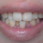 水だけ歯磨きで虫歯と口臭を予防