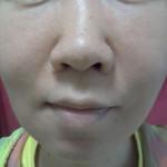 低用量ピル3週間の肌の状態