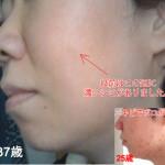 湯シャン、水洗顔の経過報告(3年以上)
