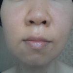 多血症も赤ら顔の原因に