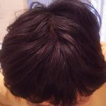 白髪は改善することがある?