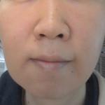 湯シャン、水洗顔、肌断食を続けて1年と1ヶ月・・・