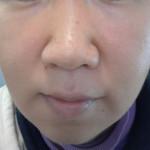 肌断食・湯シャンの経過報告(1年3ヶ月程度)