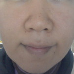 肌断食経過:小さな湿疹触りません。