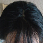 湯洗髪(湯シャン)1年半以上の頭皮と髪