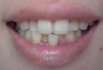20140705_dental