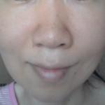 頬のたるみ経過と顔のセルライト