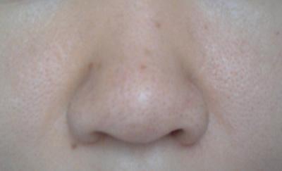 20141004_nose