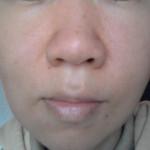顔のピーリング:効果と注意点