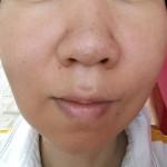 水洗顔、湯シャン、肌断食2年と9ヶ月