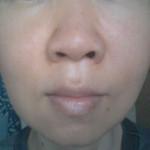 肌断食3年半経過:現在の肌の状態