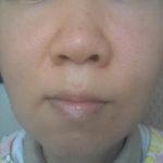 湯シャン・肌断食5年以上39歳の状態