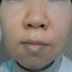 肌が乾燥する原因と対策