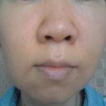 肌断食と湯シャン5年半の経過報告