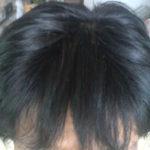 髪や頭皮のべたつき原因と対策