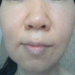 角質培養と水洗顔の角栓対策