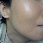 角質培養と肌断食で毛穴が小さくなった経過写真