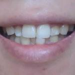 歯磨き粉を使わないで歯茎の出血が改善