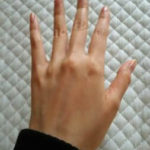 手の乾燥、ささくれなどの手荒れ対策