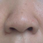 鼻の毛穴のケアどうする?